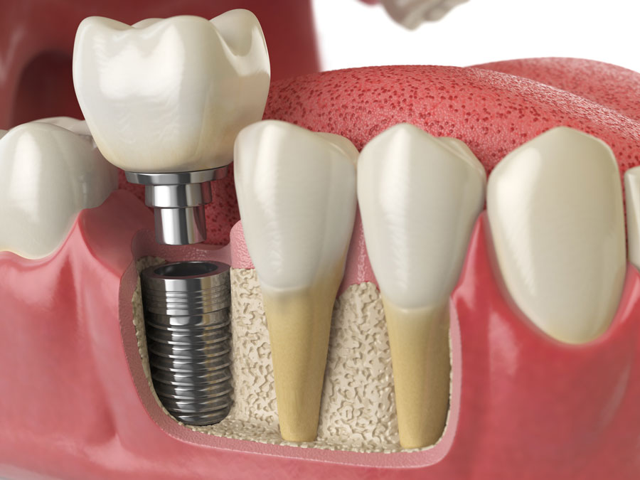 Implantologia: tipologie di impianto dentale