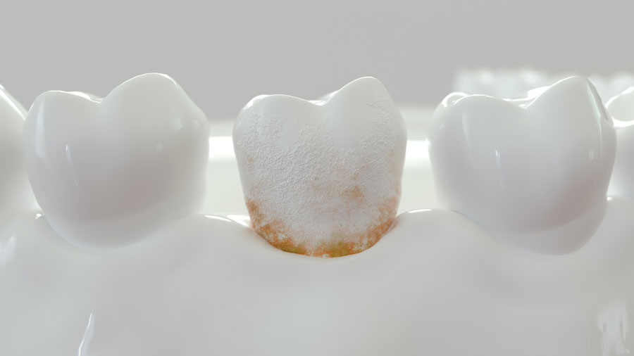 Placca dentale: come rimuoverla