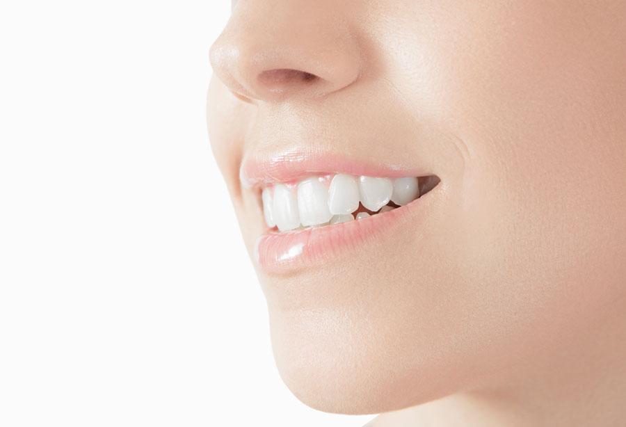 Sbiancamento dentale: come funziona